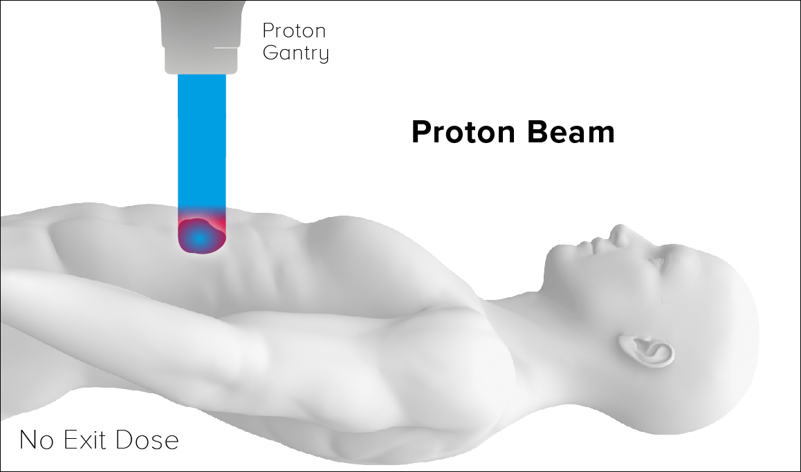 Why Proton Therapy Mevion Medical Systems
